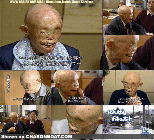 atom bomb survivor